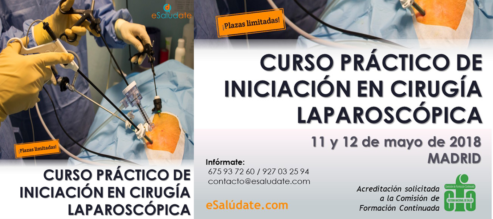 Curso práctico de iniciación a la cirugía laparoscópica
